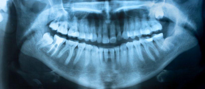 vancouver dental xray