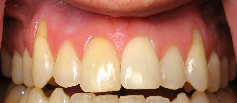 receding gums vancouver