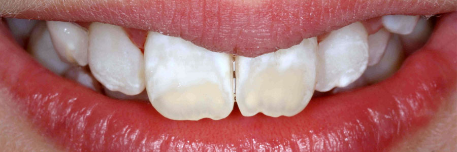 vancouver teeth discoloration