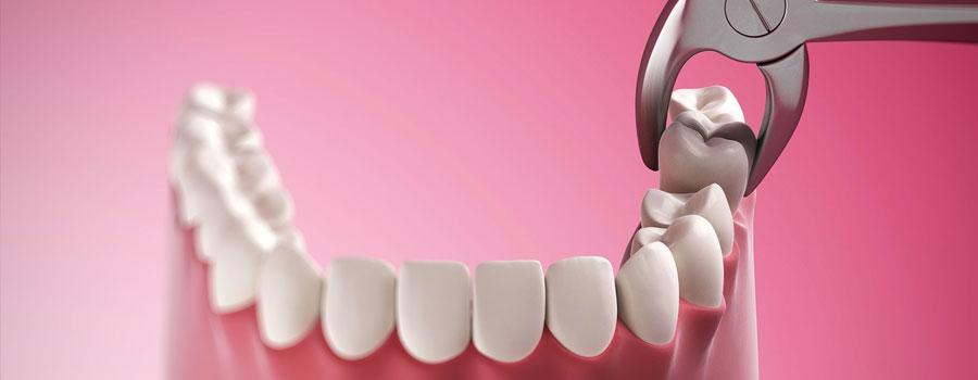 vancouver oral surgery